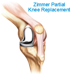 Is it time for knee replacement? - Understanding Knee